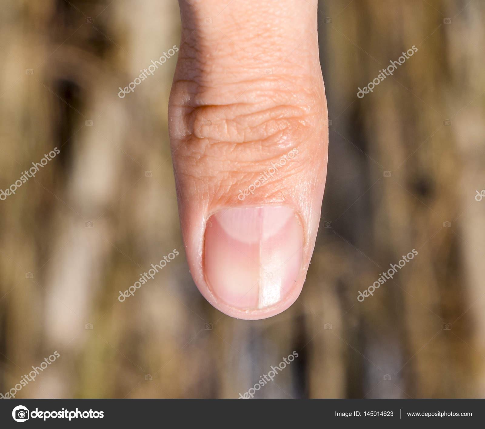 Forked Nail Thumb Dilation Nail Traumatic Pathology Nail Divided ...