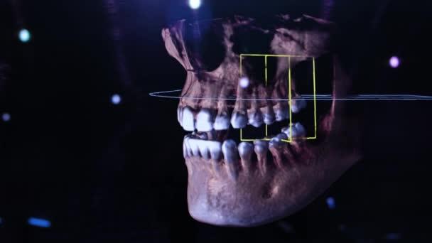 3D rekonstrukce zubní digitální modelování. 3D model zubů, naskenované zuby pacienta. Lékař studuje zub
