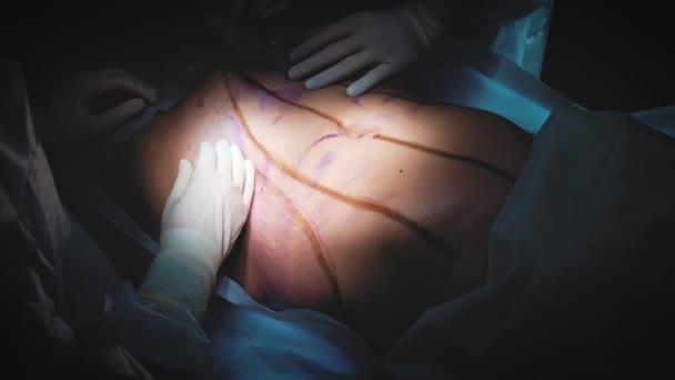 Chirurg a chirurgický tým provádíte kosmetické chirurgie na prsa v nemocnici operační sál. Zvětšení prsou. Zvětšení prsou. Liposukce. Tísňové péče. Chirurgie detail