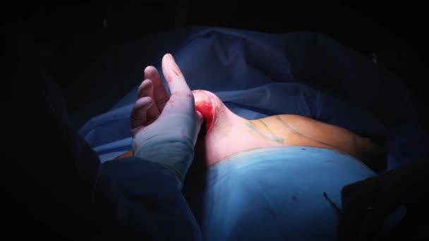 Die Einführung des Implantates in der Brust des Patienten während der plastischen Chirurgie-Brustvergrößerung. Der Chirurg fügt unter der Haut ein Silikonimplantat der weiblichen Brust. Erhöht die Titten