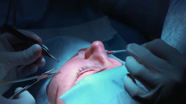 Chirurg provádí operace na očích, detail. Oprava oči a oči. Doktor dělá blefaroplastika. Operace na operačním sále. Skalpel a svorku velmi blízko k žák