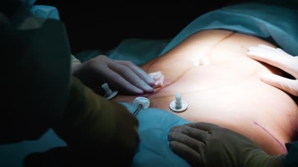 Chirurgen und OP-Team sind Schönheitsoperationen auf Brüste im Krankenhaus-OP durchführen. Brustvergrößerung. Brust-Vergrößerung. Fettabsaugung. Notfallversorgung. Chirurgie-detail.