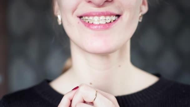 Porträt: Ein junges Mädchen mit Zahnspange blickt in die Kamera. Zahnausrichtung und Kieferkorrektur. Mundpflege. Junge Frau mit Zahnspange blickt in die Kamera und lächelt