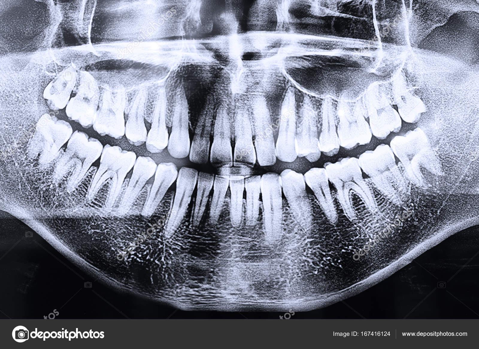 radiografía panorámica dental — Foto de stock © czdistagon #167416124