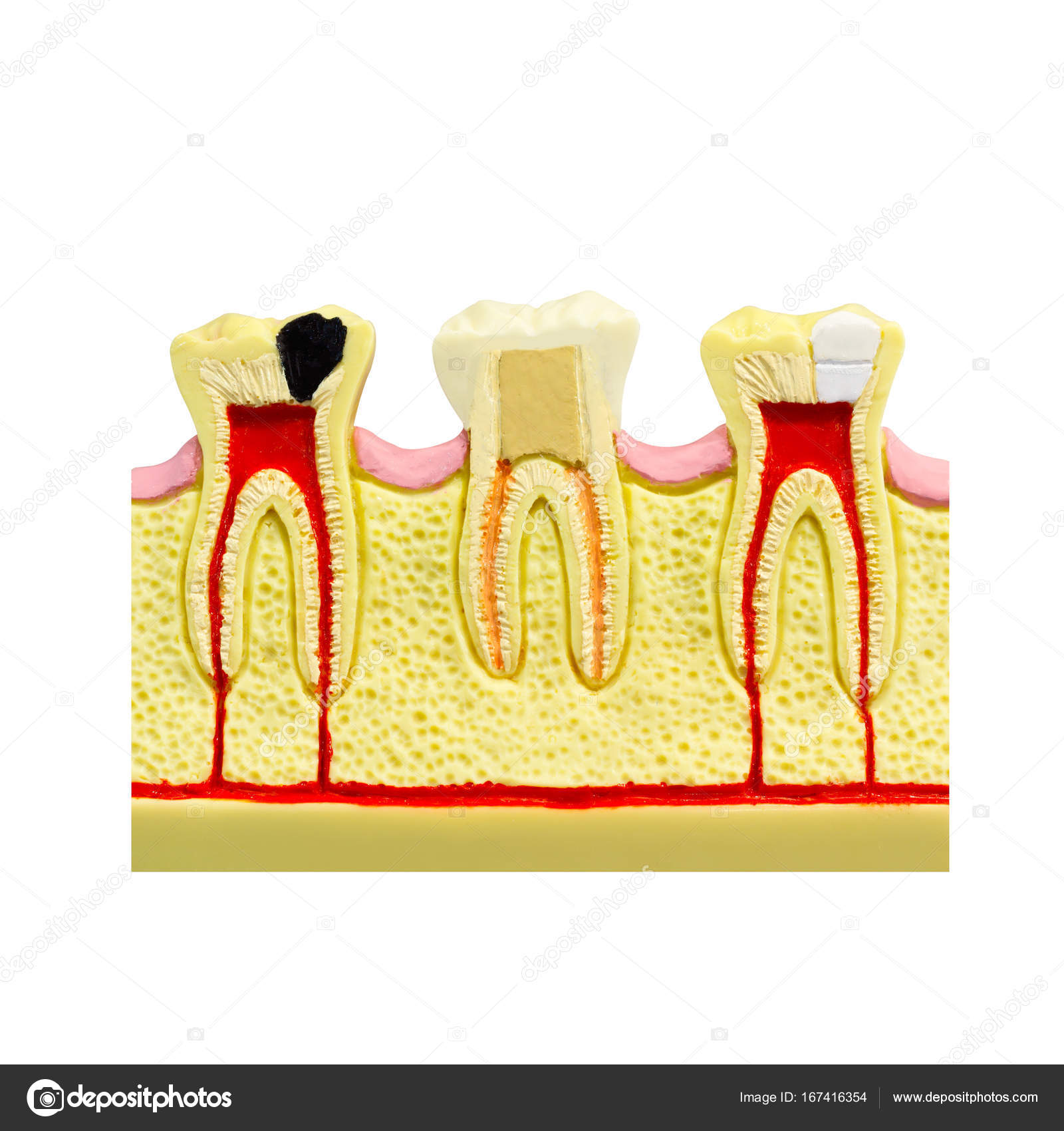 Human tooth gum cross section Tooth Root canal Tooth Detailed ...