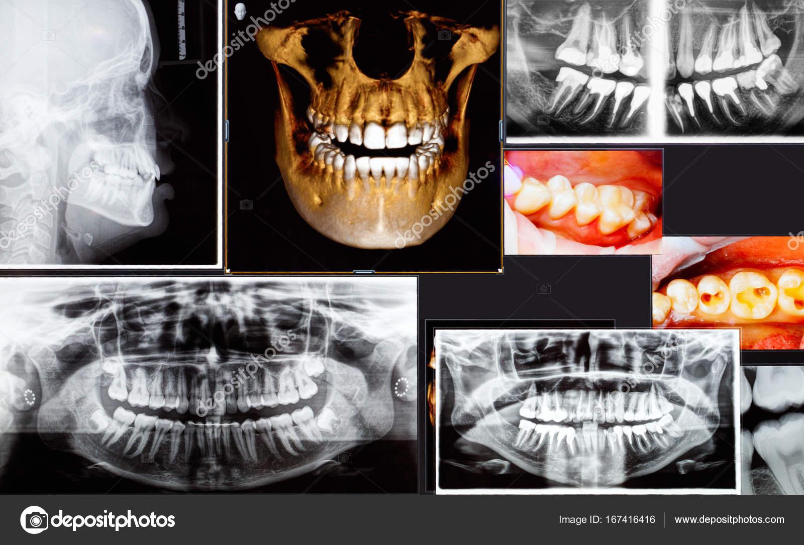 Muchos disparos de rayos x dental panorámico y 3d — Fotos de Stock ...