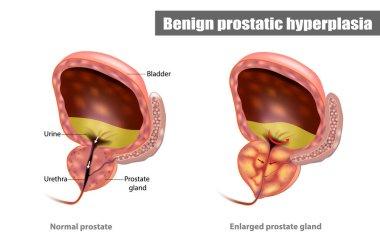 Prostatitis kezelése 2 fok)