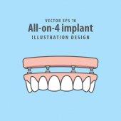 Fotografie All-on-4 Implantat Abbildung Vektor auf blauem Hintergrund. Dental