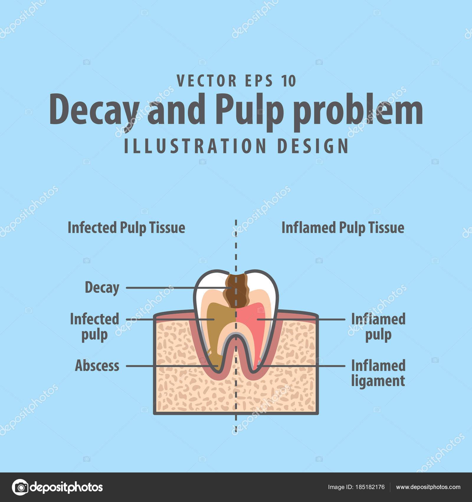 Verfall und Zellstoff Querschnitt Problemstruktur im Zahn diag ...
