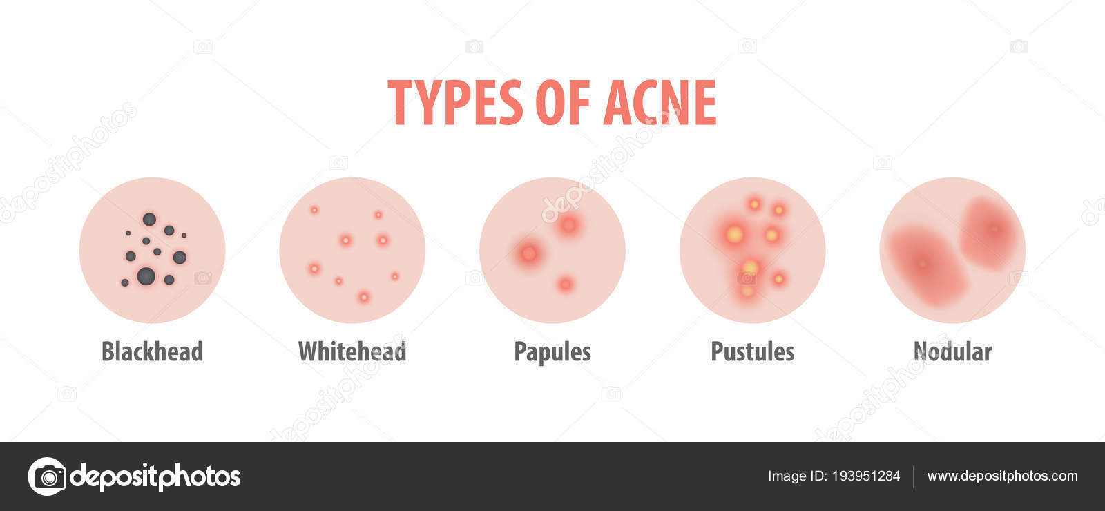 diagram of acne wiring diagramdiagram of acne