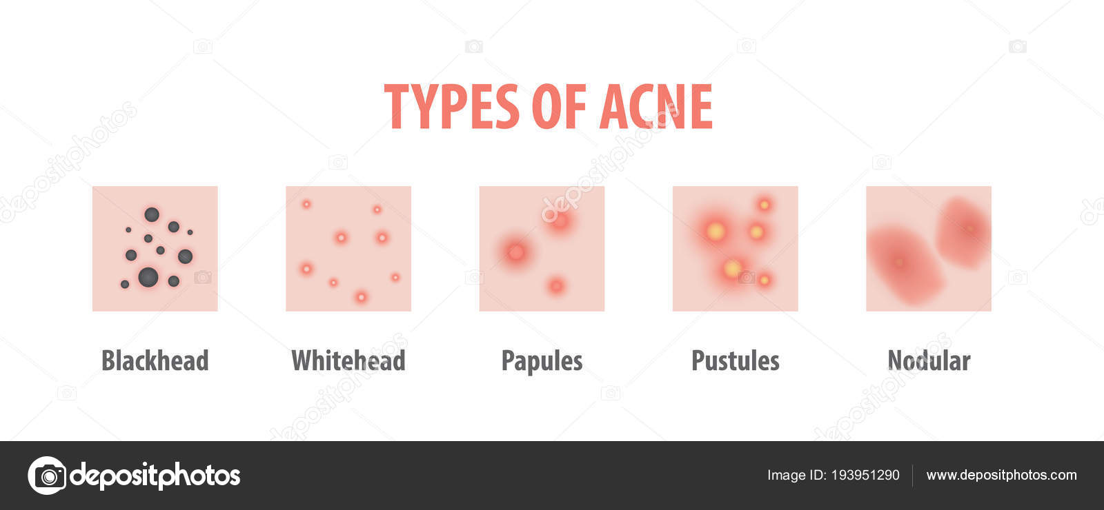 types of acne diagram illustration vector on white background, b — stock  vector