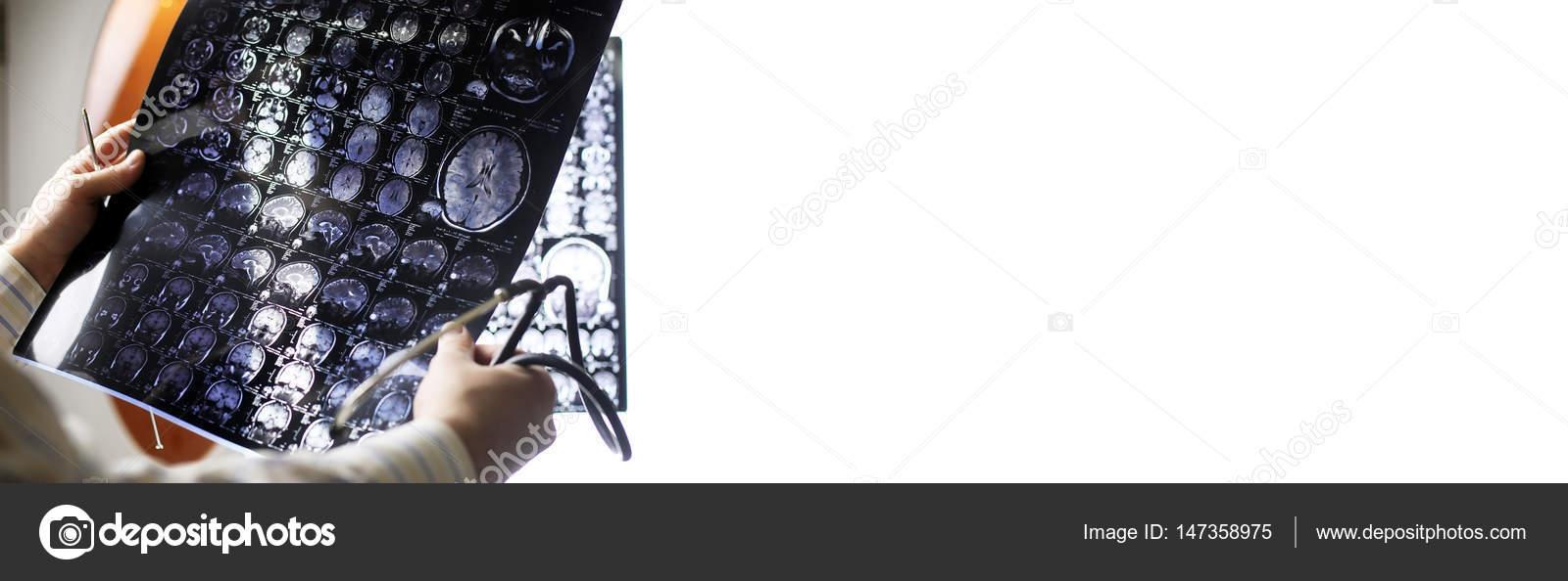 Arzt hält ein Bild eines Gehirns Mri — Stockfoto © alexkich #147358975