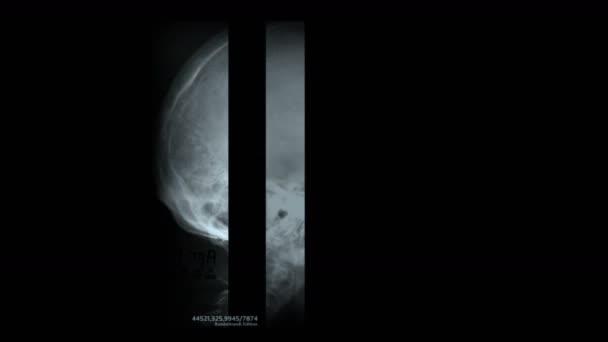 4 k lidská hlava kosti kostry lebky X-ray skenování, lékařský výzkum tělesné zdraví  smrti