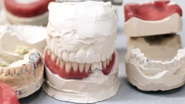 Dental crowns on the models of jaws