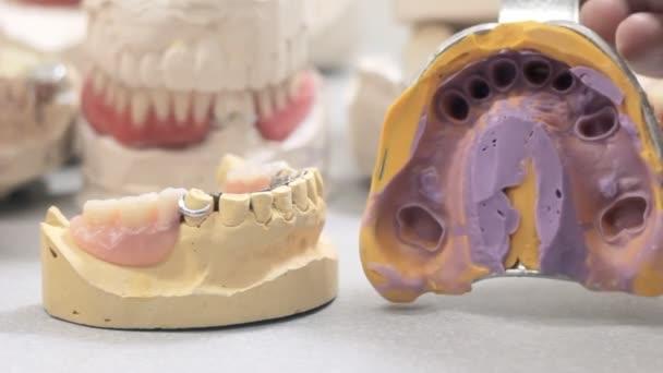 Der Arzt zeigt die Vorlage für die Anordnung des Kiefers und die Entfernung der Zahnkrone