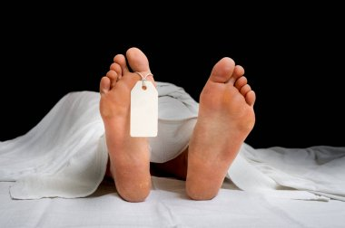 The dead woman's body with blank tag on feet