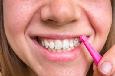 Woman brushing her teeth with interdental brush