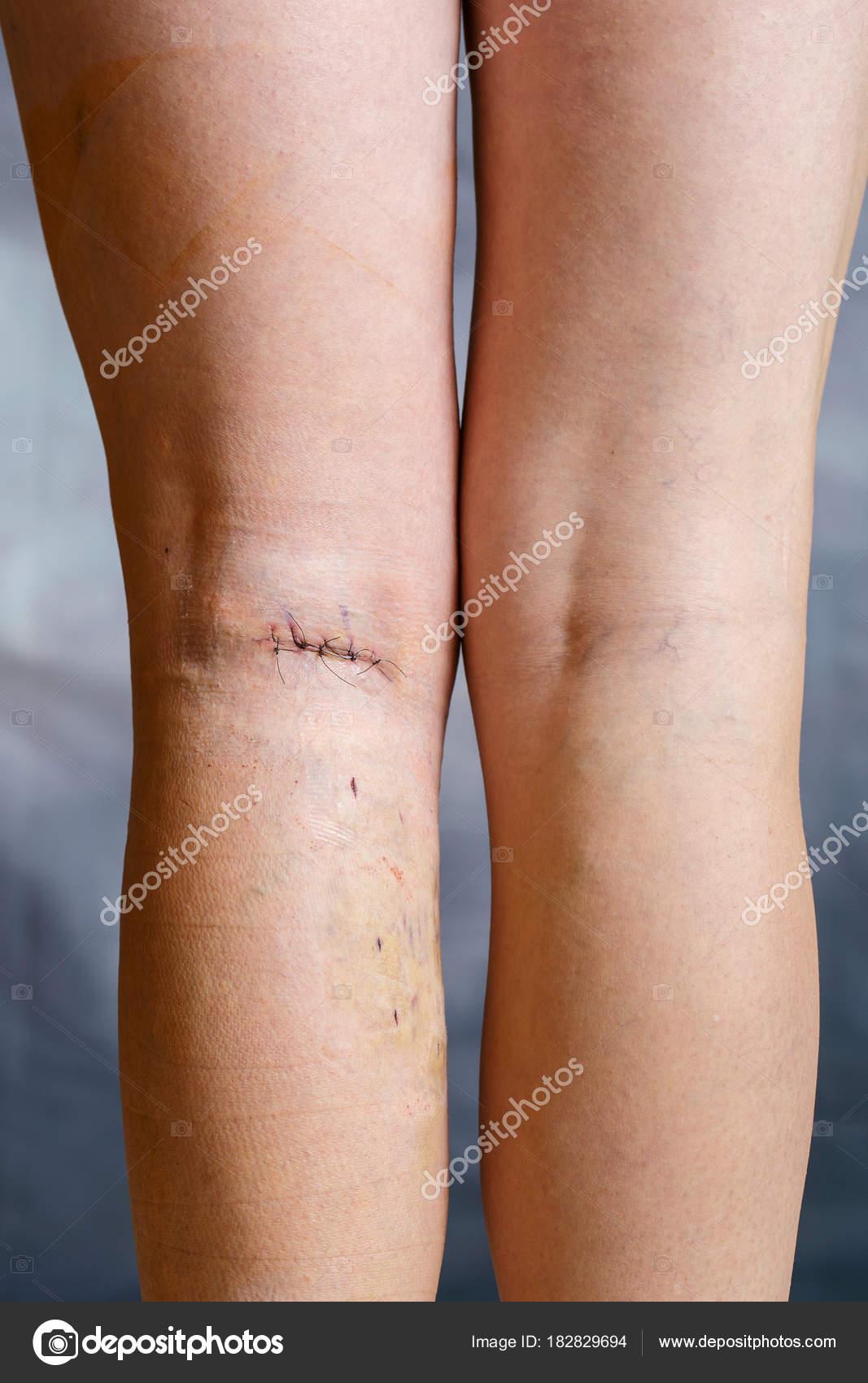 que hacer despues de una trombosis en la pierna