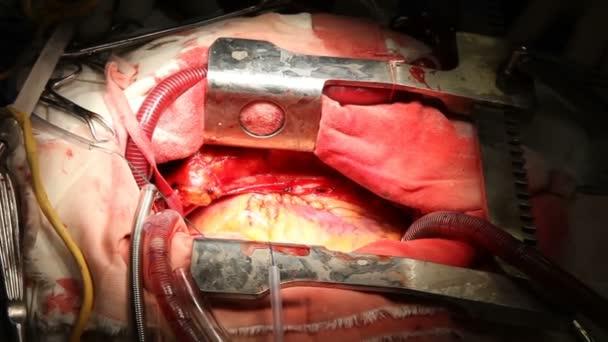 Cirurgia Cardíaca Trabalhos Cirurgia — Vídeo de Stock