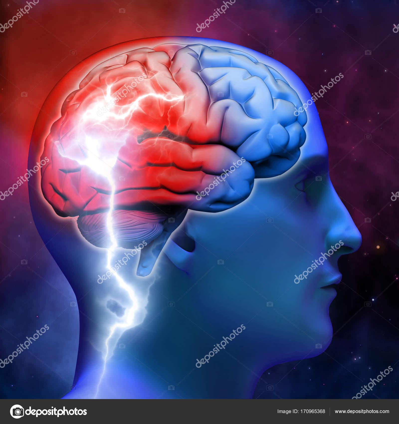 A Bright Flash In The Human Brain Neurology And Disease Nervou