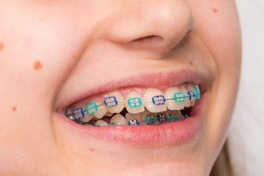 Stock photo of the metal braces