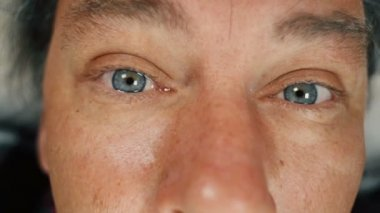 Close up of adult man pouring drops into his eye