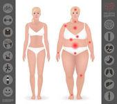 Tělo ženy, tlusté a tenké, body, detailní vektor jsem