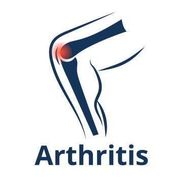 Knee arthritis vector icon. Knee joint pain concept