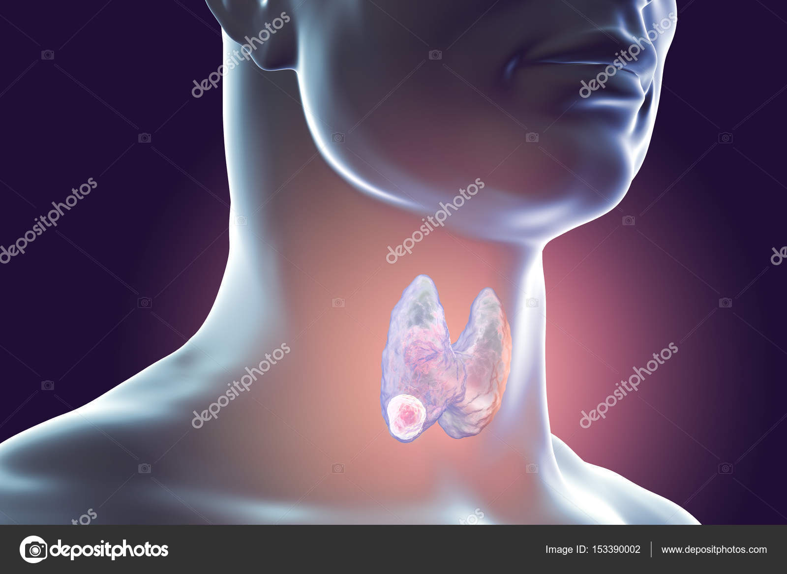 Cancer de la thyroïde. illustration — Photographie katerynakon ...