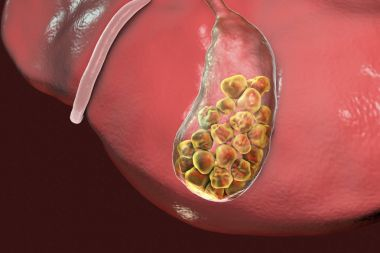 Gallstones, illustration showing bottom view of liver and gallbladder with stones