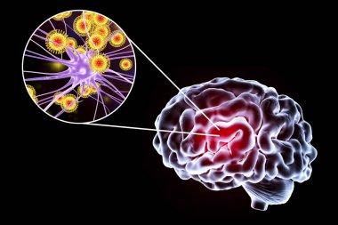 Viral encephalitis illustration