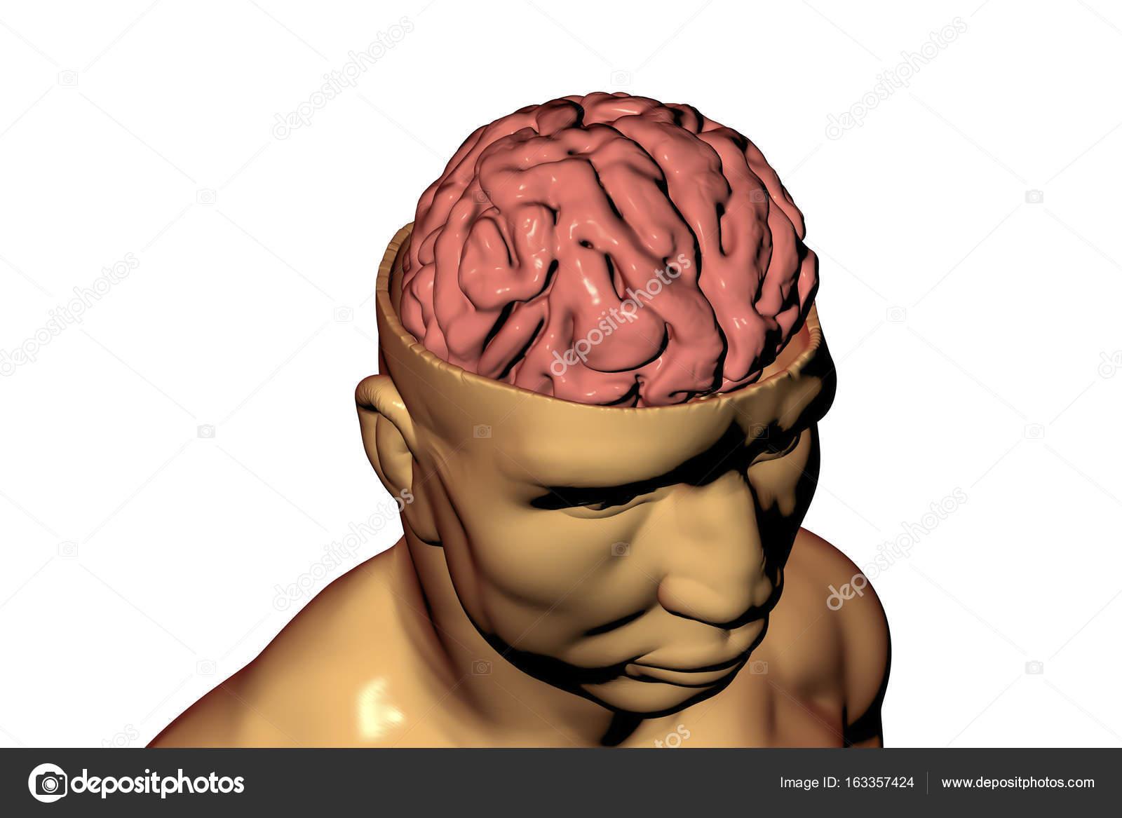 Cerebro humano dentro de la cabeza — Fotos de Stock © katerynakon ...