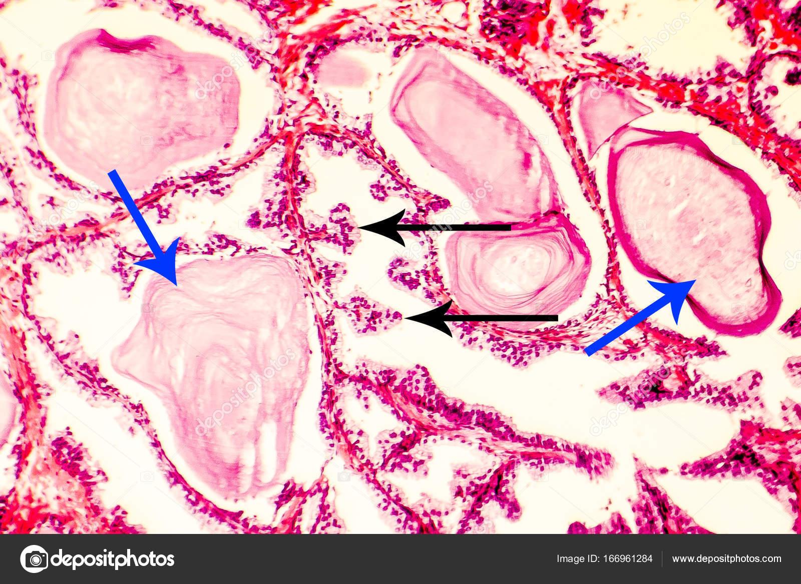 prostata strutturata
