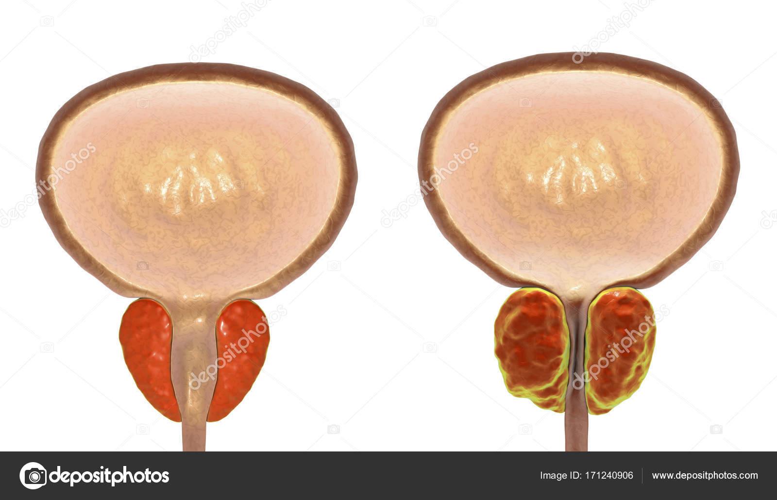hipertrofia prostática benigna bph