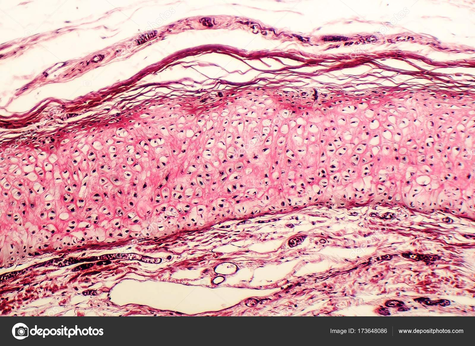 Picture Cartilage Tissue Elastic Cartilage Of Human Outer Ear