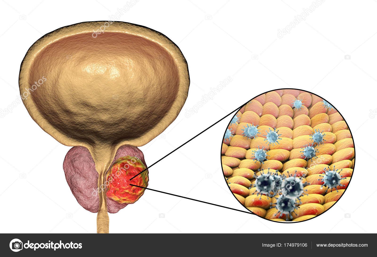 la prostata può essere infettata?