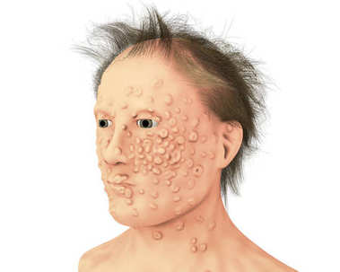 A man with smallpox infection and variola virus, a virus from Orthopoxviridae family that causes smallpox