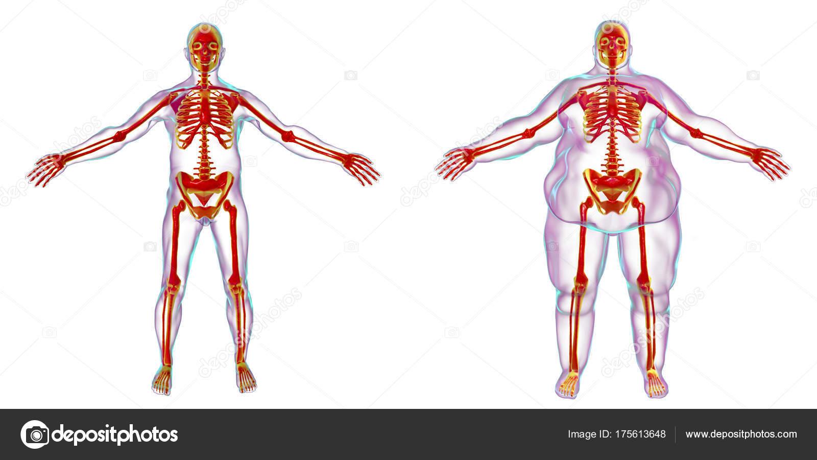 Fettleibigkeit Problem Konzeptbild — Stockfoto © katerynakon #175613648