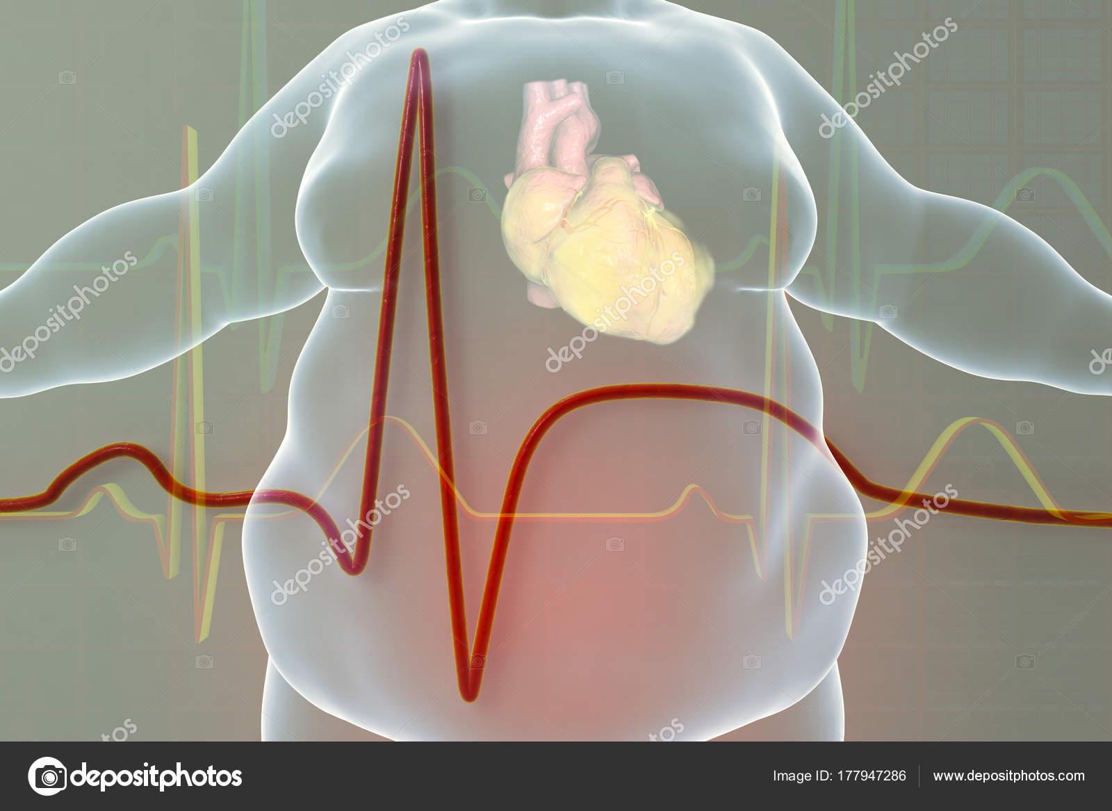 Enfermedad en la persona de obesidad — Foto de stock © katerynakon ...