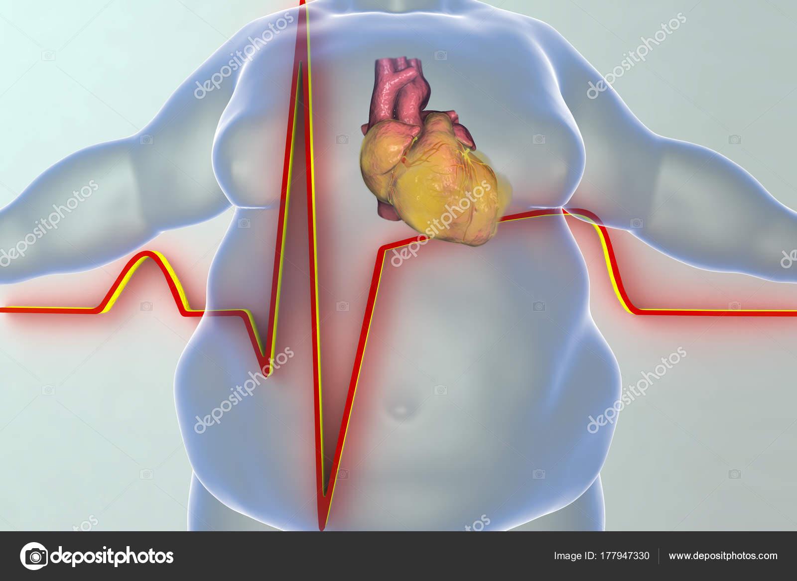 Herzerkrankungen bei Übergewicht person — Stockfoto © katerynakon ...