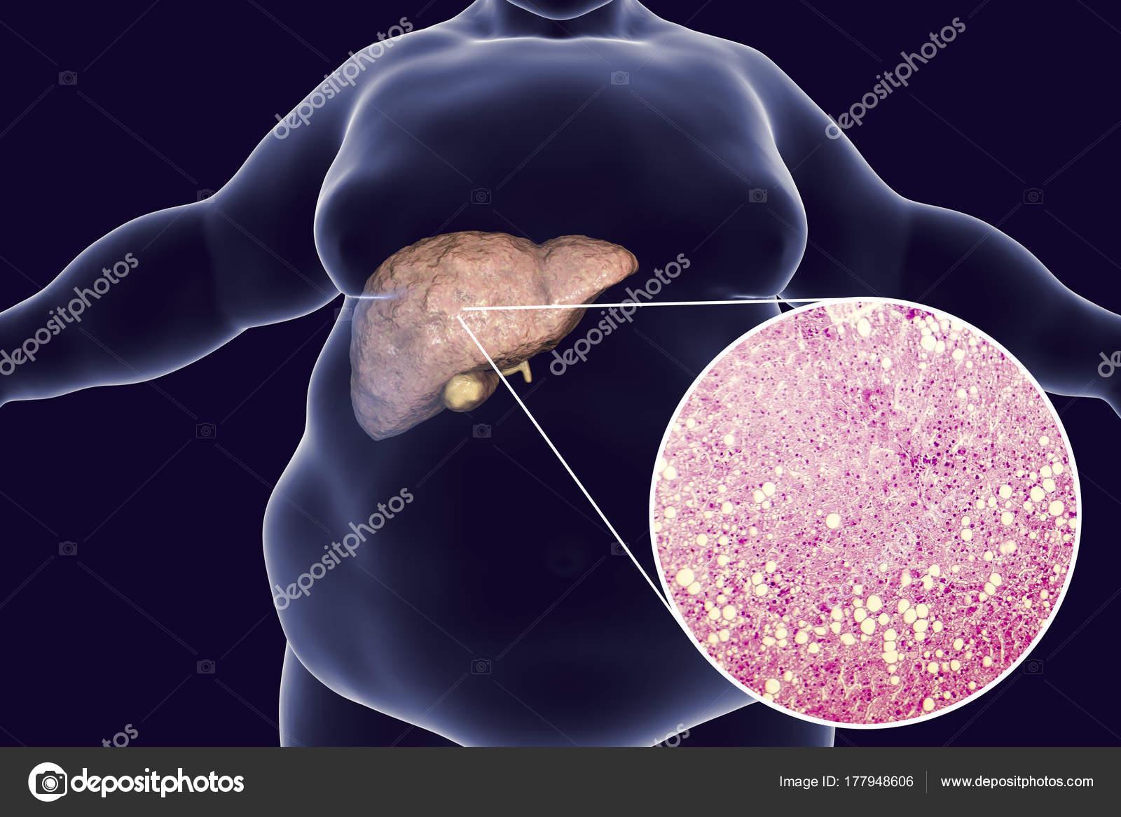 Hombre obeso con hígado graso — Fotos de Stock © katerynakon #177948606