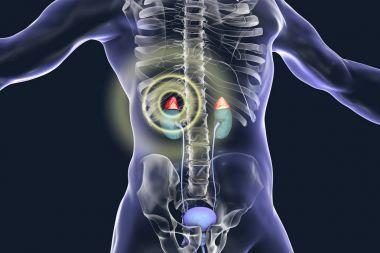 Adrenal pathology treatment concept