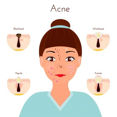 Skin problems. Girl closse up face with different types of acne pimples. Facial treatments and problems vector illustration. Whiteheads and Blackheads, Papules and Pustules, stages of development