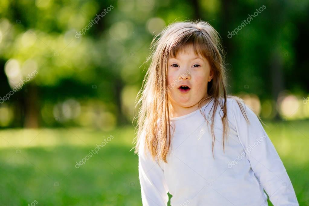 child suffering from Down syndrome
