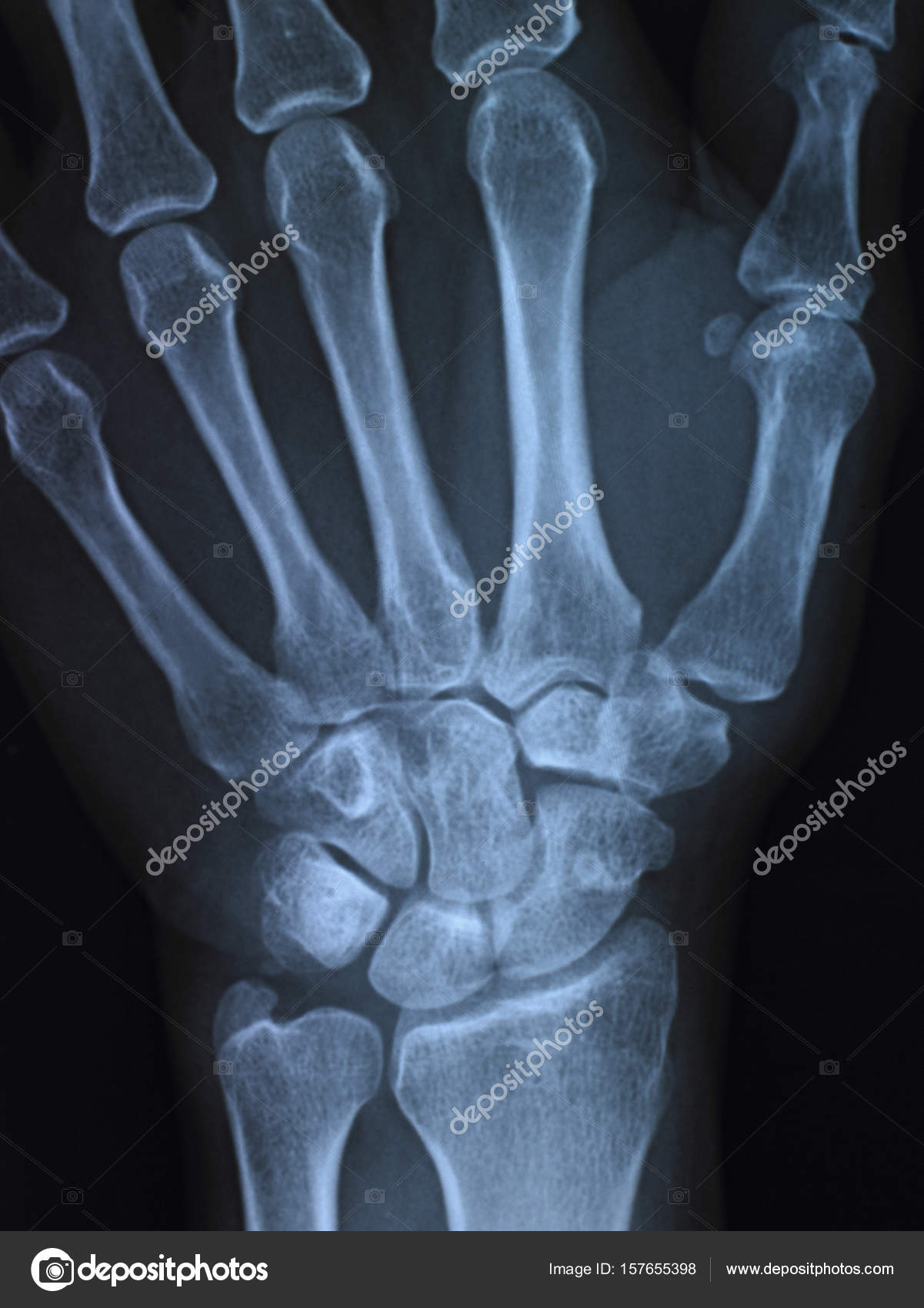 X-ray anatomy Concept — Stock Photo © topphoto #157655398