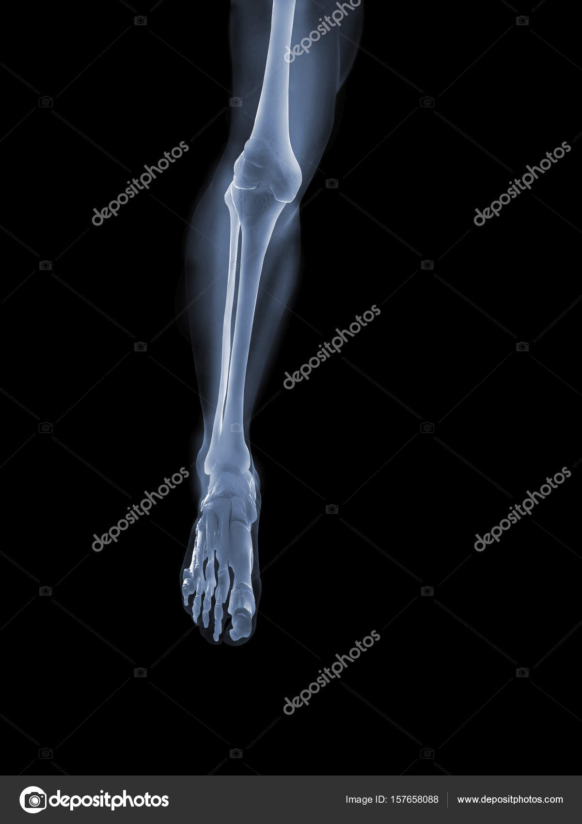 X Ray Anatomy Concept Stock Photo Topphoto 157658088