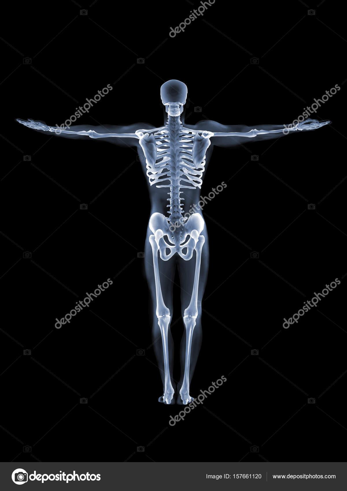 X-ray anatomy Concept — Stock Photo © topphoto #157661120