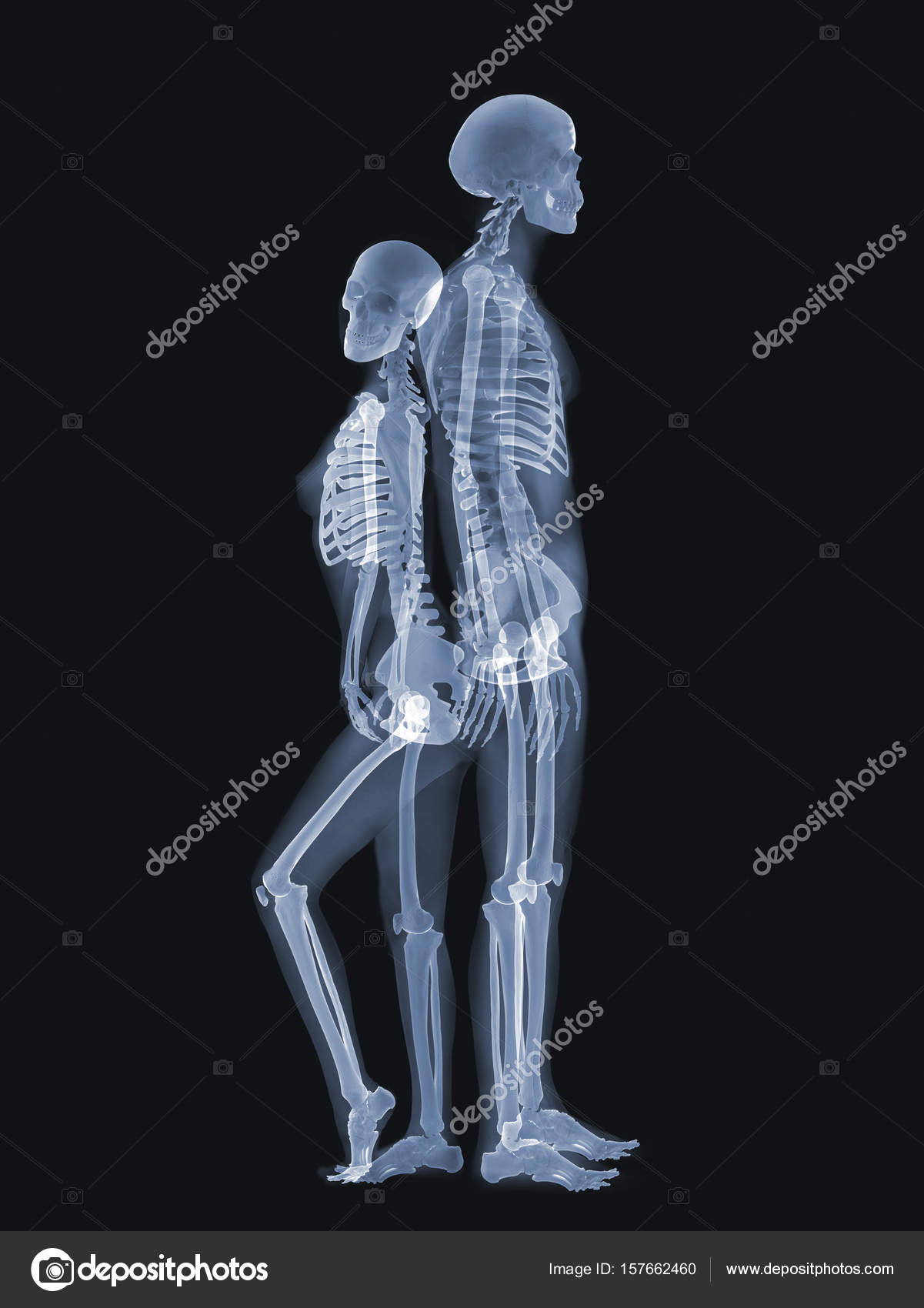 X-ray anatomy Concept — Stock Photo © topphoto #157662460