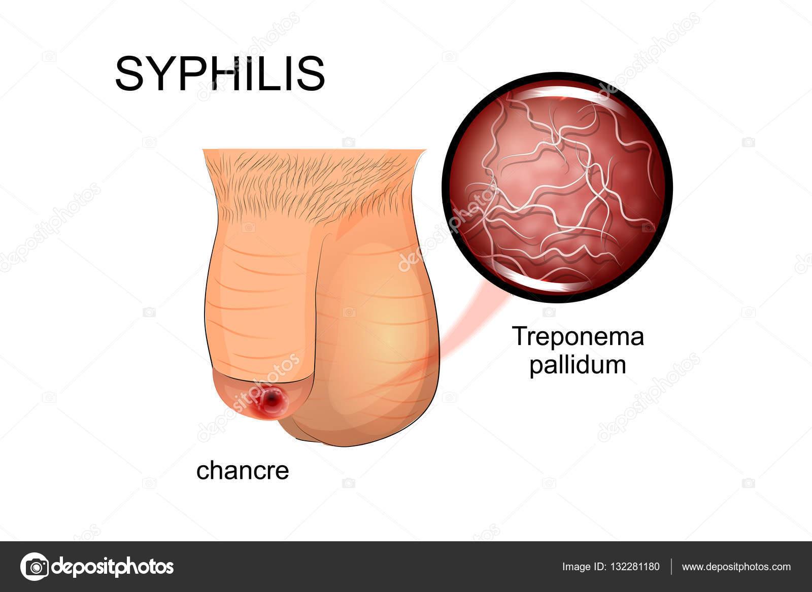 Syphilis Pathogen Chancre Stock Vector C Artemida Psy 132281180