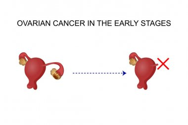 cancer of the ovary.
